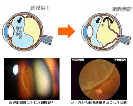 前兆 網膜 剥離