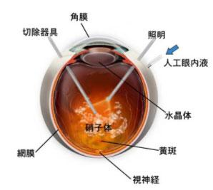 手術 硝子 体